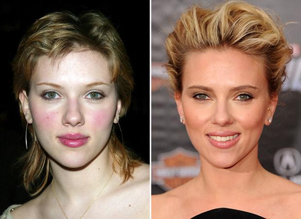 Chirurgia Estetica Naso VIP: Scarlett Johansson